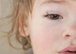 Alerjik Konjonktivit Mi Enfeksiyon Mu? Nasıl Ayırırız?