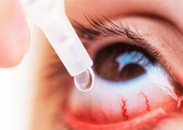 Alerjik Konjonktivit Tedavisi Nasıl Yapılmalıdır?
