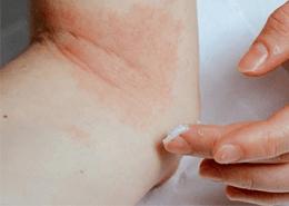 Alerjik egzama nasıl tedavi edilir?