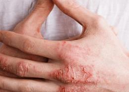 Alerjik egzamanın nedenleri nelerdir ?