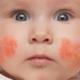 Atopik Dermatit (Egzama) Belirtileri Nelerdir?