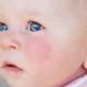 Atopik Dermatit Nedir ve Sıklığı Nedir?