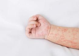 Atopik Dermatit Tedavisinde Hangi İlaçlar Kullanılmalıdır?