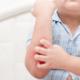 Atopik Dermatit Yaşam Boyu Devam Eder Mi, Zamanla Düzelir Mi?