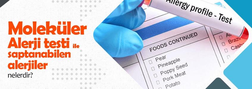 Moleküler Alerji Testi İle Alerjik Şok Nedenleri Ayrıntılı Ortaya Çıkarılabilir