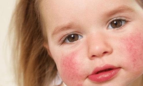 Çocuklarda besin alerjisi neden olur