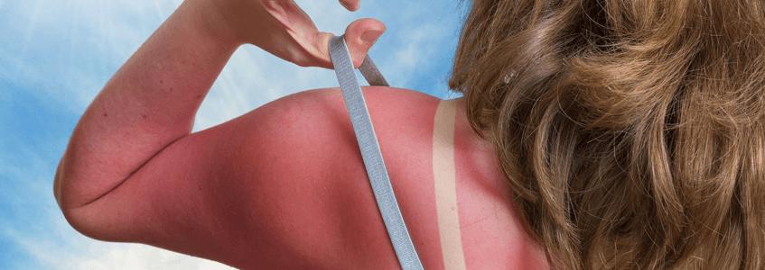 Güneş alerjisi nedir Güneş alerjisi belirtileri ve tedavisi